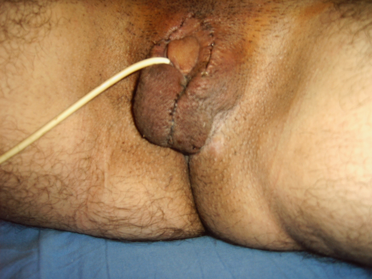 Testicle Removal Pictures